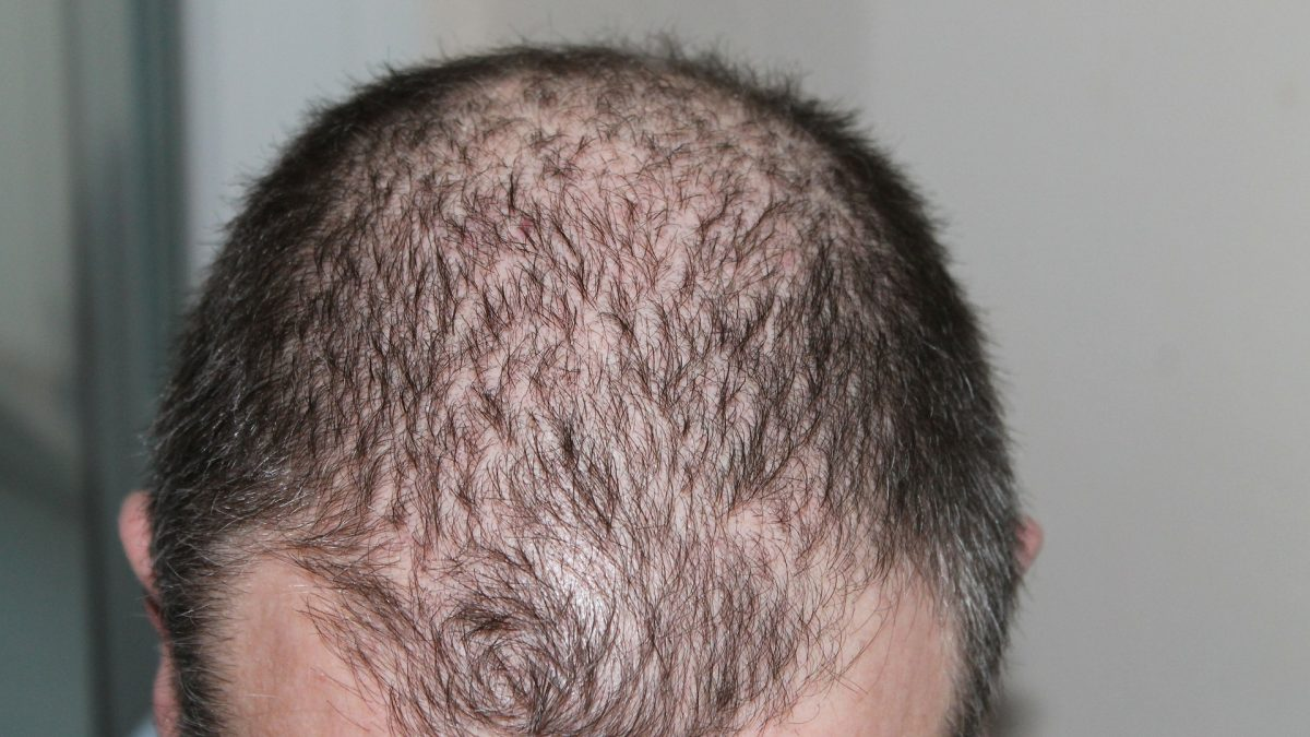 Replicel Life Sciences Inc (CVE:RP) (OTCMKTS:REPCF) (FRA:P6P2) is after one of the elusive holy grails of modern medicine: a cure for pattern baldness.